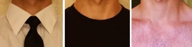 All Collars